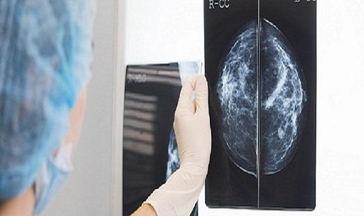 Review of Scottish Breast Screening Programme announced