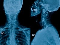 Neck and skull x-ray