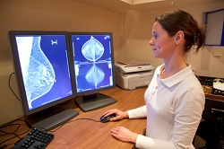 Breast screening computer