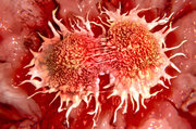 NICE recommends a CAR T-cell therapy for adults with some types of non-Hodgkin lymphoma